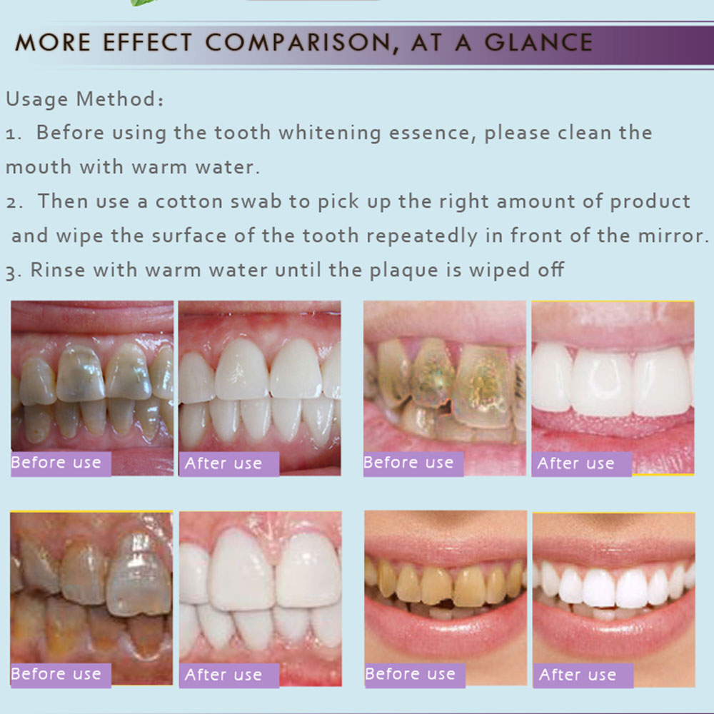Details about 7DDD 10ml Toothpaste Liquid Dental Cleaning Halitosis Teeth  Cleaning Whitening